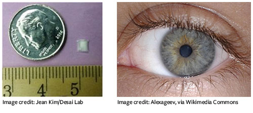 Left: implant shown considerably smaller than a dime; right: Close-up of human eye